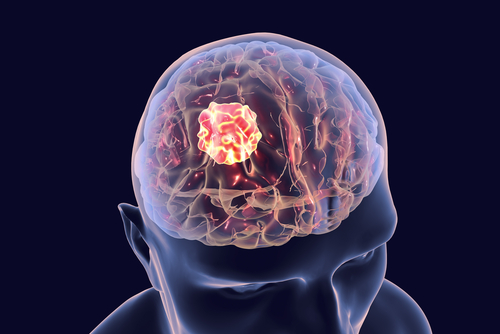 Watch Out for these 7 Brain Tumor Signs