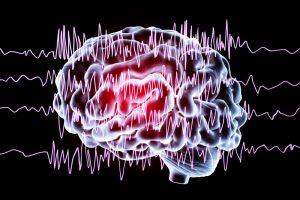 Managing and Treating Epilepsy